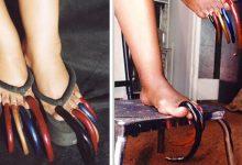 30 سال سے زائد عرصے سے پاؤں کے ناخن نہ کاٹنے والی خاتون